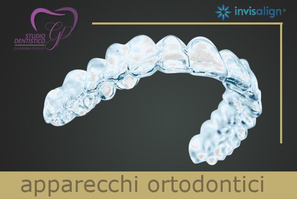 invisalign roma sud giovanna pileggi ortodonzia invisibile roma