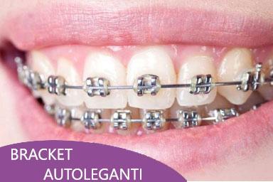 ortodonzia roma bracket autoleganteviale del poggio fiorito dentista eur