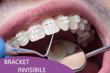 ortodonzia roma bracket invisibileviale del poggio fiorito dentista eur
