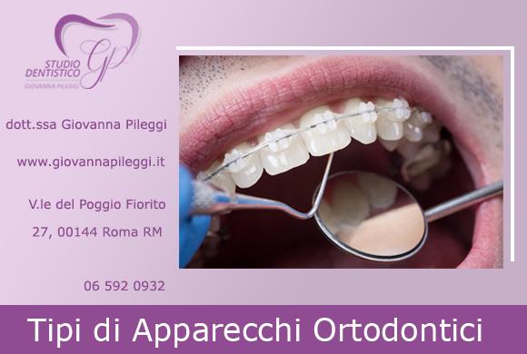 tipi di apparecchi ortodontici viale del poggio fiorito 27 roma eur giovanna pileggi