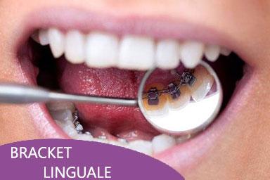 ortodonzia roma bracket linguale viale del poggio fiorito dentista eur