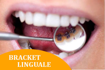 ortodonzia roma bracket Linguali Dott.ssa Pileggi