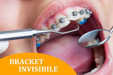 ortodonzia roma bracket invisibile Dott.ssa Pileggi