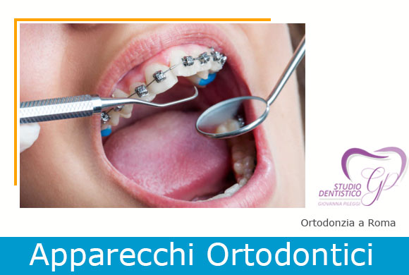 ortodonzia roma Giovanna Pileggi