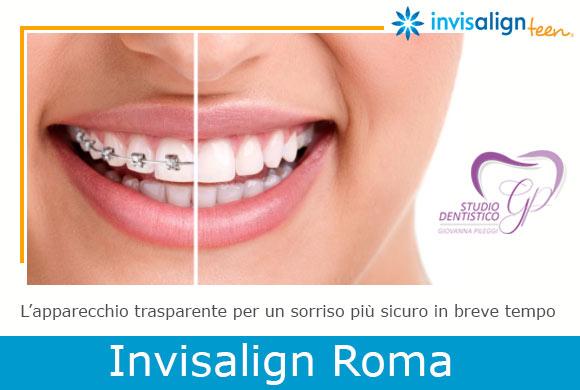 Invisalign roma allineatore denti apparecchio invisibile viale del poggio fiorito roma eur
