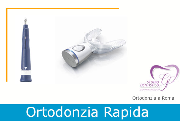 ortodonzia rapida a roma giovanna pileggi